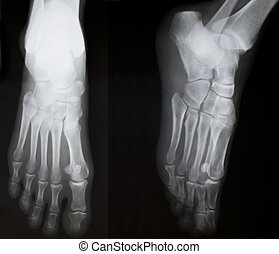 X-ray of both human feet