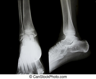 X-ray of both human feet.