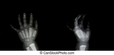 X-ray of both human hands