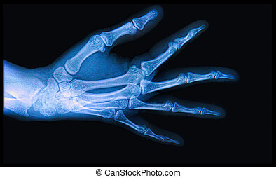 X-ray of Hand and fingers