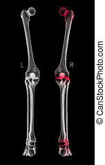 X-ray of Human Leg bone posterior view red highlights in arthritis leg joint pain area- 3D Medical and Biomedical illustration- Healthcare- Human Anatomy and Medical Concept- Black and white color