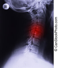 X-ray of neck, lateral projection. Cervical sprain...