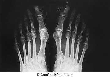 X-ray of the foot, valgus deformity of the toe