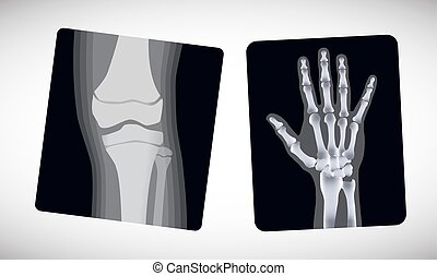 X-ray of the hand and foot. Vector