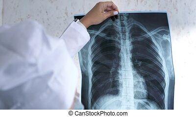 X-ray of the lungs in the hands of the doctor,the attending physician points his finger at the X-ray of the lungs to study the disease. Pulmonary edema,pneumonia.