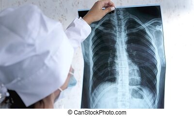X-ray of the lungs in the hands of the doctor,the attending physician points his finger at the X-ray of the lungs to study the disease.Close-up.Pulmonary edema,pneumonia.