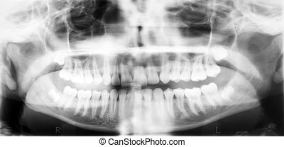 X-ray of the oral cavity.
