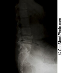 X-ray of the pelvis and spinal column.
