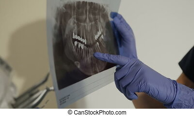 X-ray of the teeth in the hands of the dentist. Female dentist shows a young man's ill tooth on a radiograph