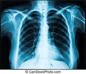 x-ray of thorax - Woman thorax x-ray for lungs examination
