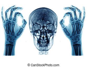 x ray picutre