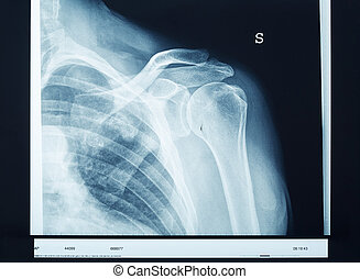 X-ray shoulder