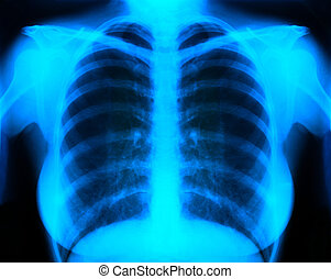 x-ray - X-Ray Image Of Human Chest for a medical diagnosis