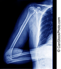 x-ray - X Ray Picture fo the human body part