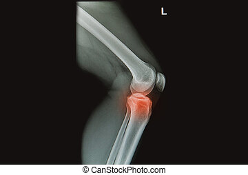 x-rays image of  the painful or injury knee joint, knee trauma