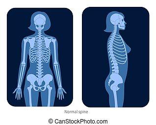 x, rygg, stråle