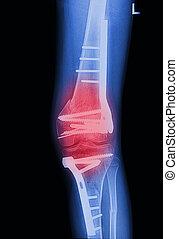 x, strahlen, bild, kaputte , kniegelenk, mit, implantat, röntgenbilder, schmerzhaft, von, kniegelenk