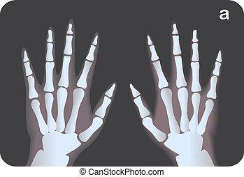 x- vyzařovat podobenství, o, ruce, vektor, ilustrace