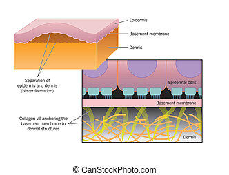 XFormation of a blister - Drawing of blister formation in...
