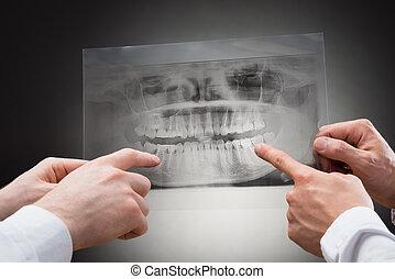 xray, dentaal, tandarts, vasthouden, twee