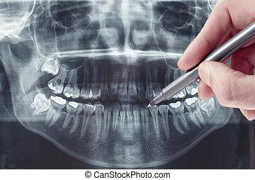 xray, dentaire