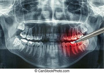 xray dental