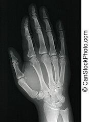 Xray hand - xray of a healthy right hand