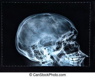 xray, hoofd, schedel, /
