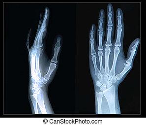 Xray of Hand/ fingers