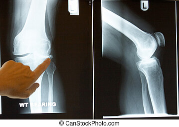 Xray of knee - Xray of a knee with finger poining at bone
