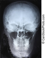Xray of Skull. For you design