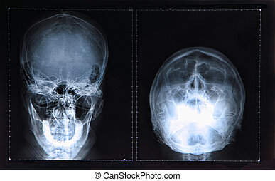 Xray of Skull / Head