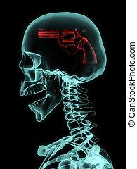 Xray of skull with gun.