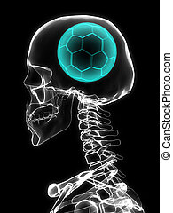 Xray of skull with soccer ball.