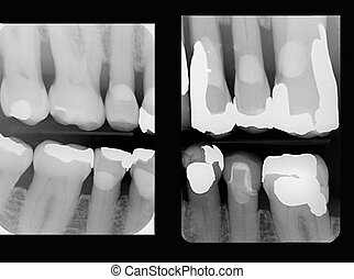 xray of teeth with fillings