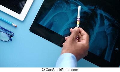 xray, photographie numérique, tablette, arrière-plan bleu