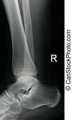 Xray right ankle - xray of an intact right ankle