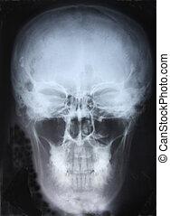 xray, schedel