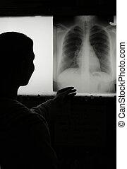 xray - Xray tech checking a film of a chest xray