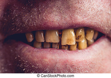 Yellow and curved teeth of a smoker covered with dental stone, macro close up photo