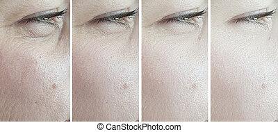 yeux, avant, après, rides, traitement, femme