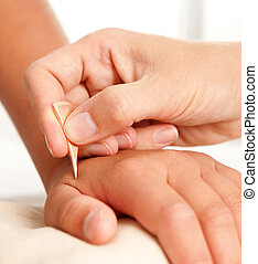 Yoneyama Shonishin Acupuncture Tool - Hand of a young male...