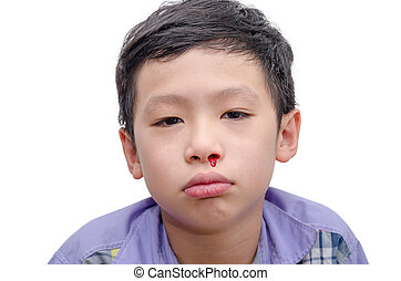 boy with bleeding from nose over white