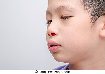 boy with bleeding from nose