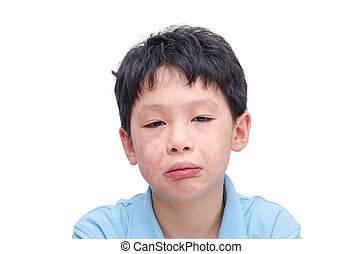 Young asian child face with rash over white background