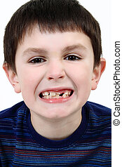 Young boy grimacing and showing off his missing milk tooth