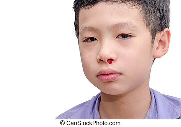 Young boy with bleeding from nose
