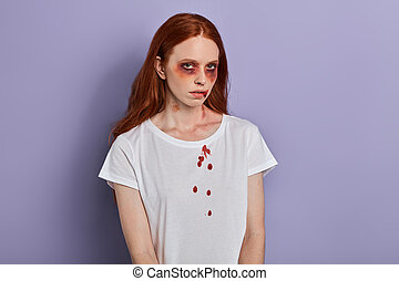 young ginger girl with awful bruises on her eyes looking at the camera