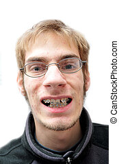 Young man smiling with braces
