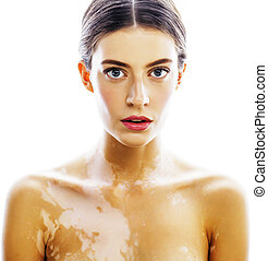 young pretty brunette real modern woman with vitiligo...